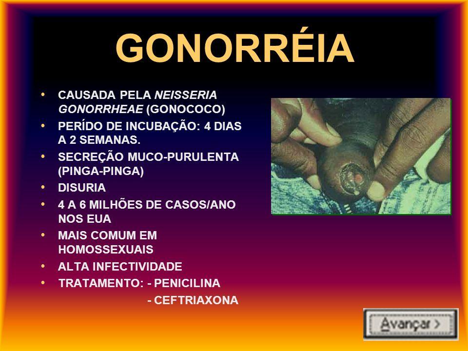 GONORRÉIA CAUSADA PELA NEISSERIA GONORRHEAE (GONOCOCO)
