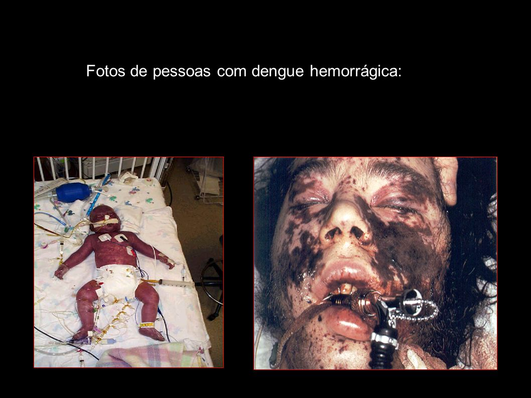 Fotos de pessoas com dengue hemorrágica: