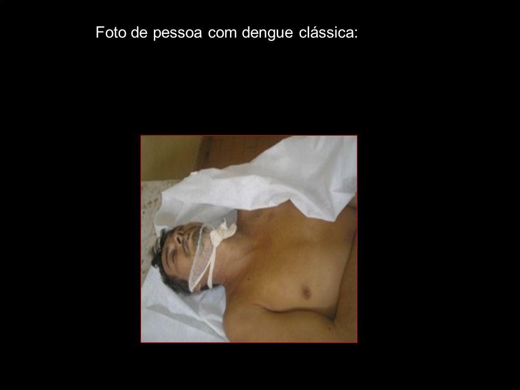 Foto de pessoa com dengue clássica: