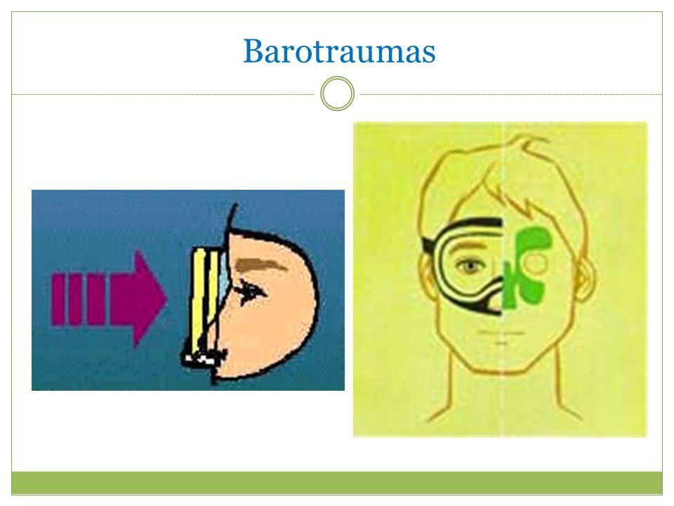 Barotraumas