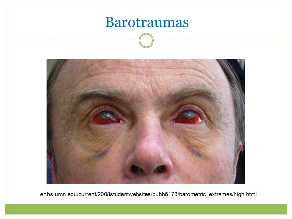 Barotraumas enhs.umn.edu/current/2008studentwebsites/pubh6173/barometric_extremes/high.html