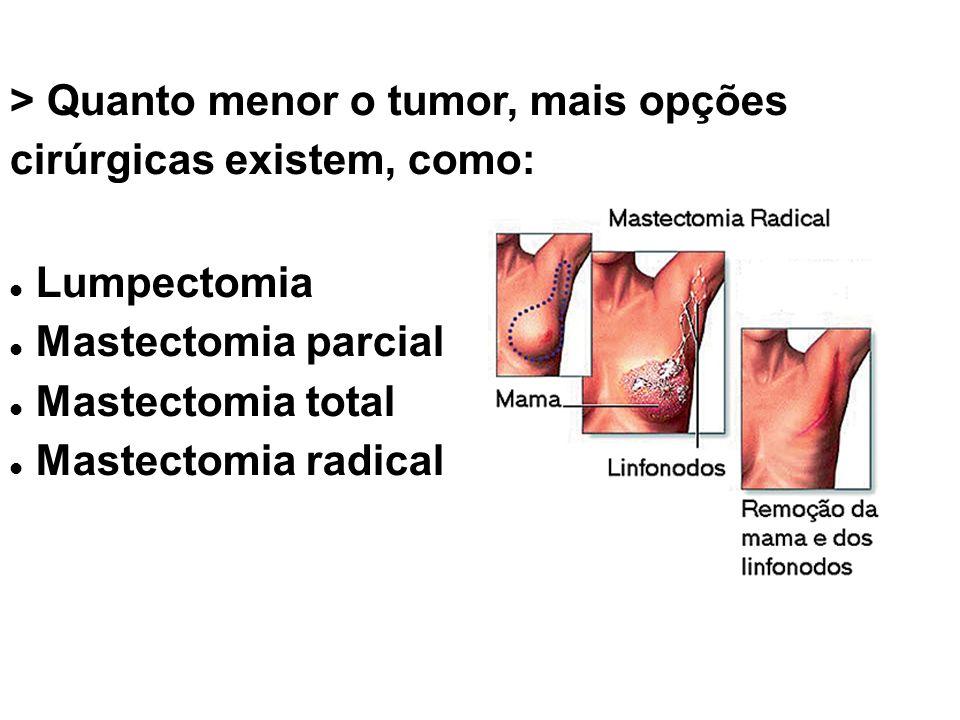 > Quanto menor o tumor, mais opções cirúrgicas existem, como: