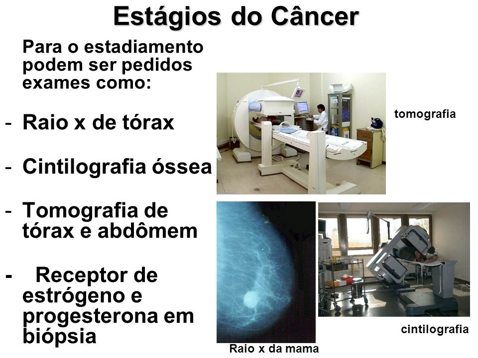 Estágios do Câncer Raio x de tórax Cintilografia óssea