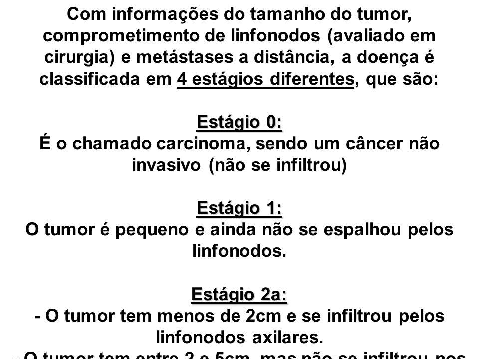 É o chamado carcinoma, sendo um câncer não invasivo (não se infiltrou)