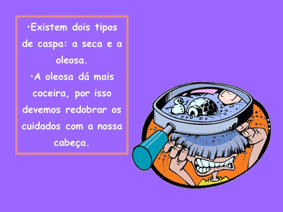 Existem dois tipos de caspa: a seca e a oleosa.