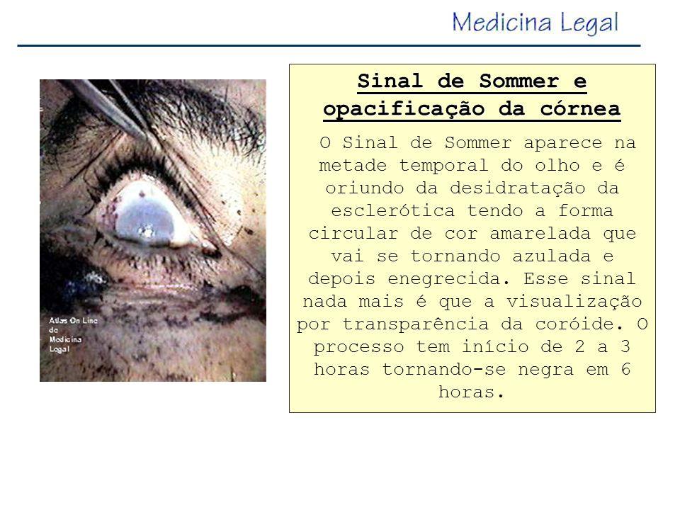Sinal de Sommer e opacificação da córnea