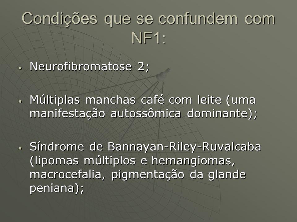 Condições que se confundem com NF1: