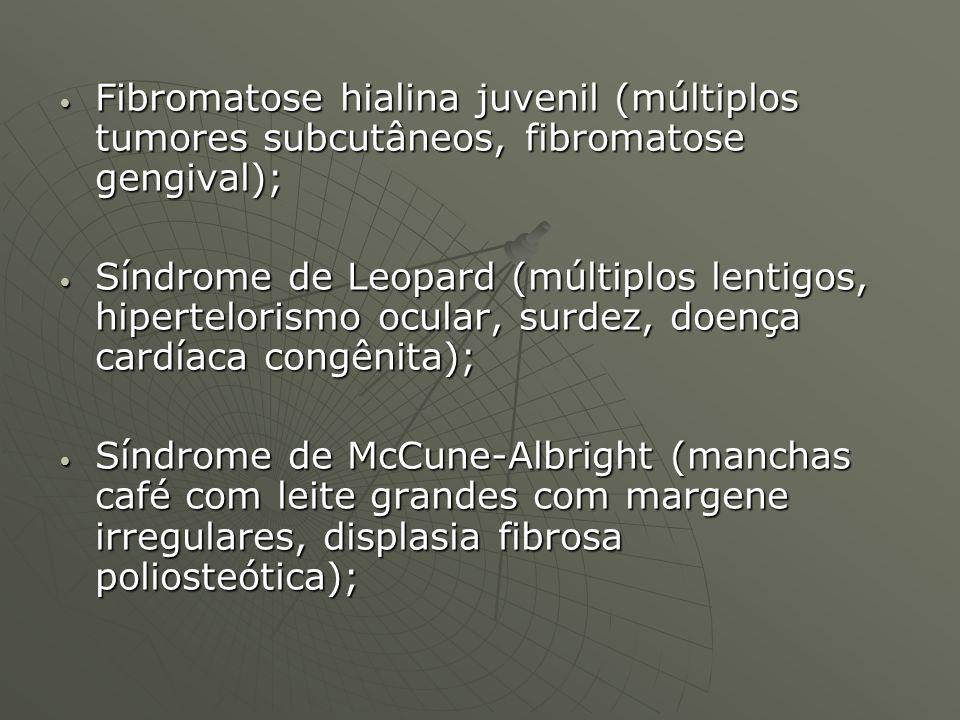 Fibromatose hialina juvenil (múltiplos tumores subcutâneos, fibromatose gengival);