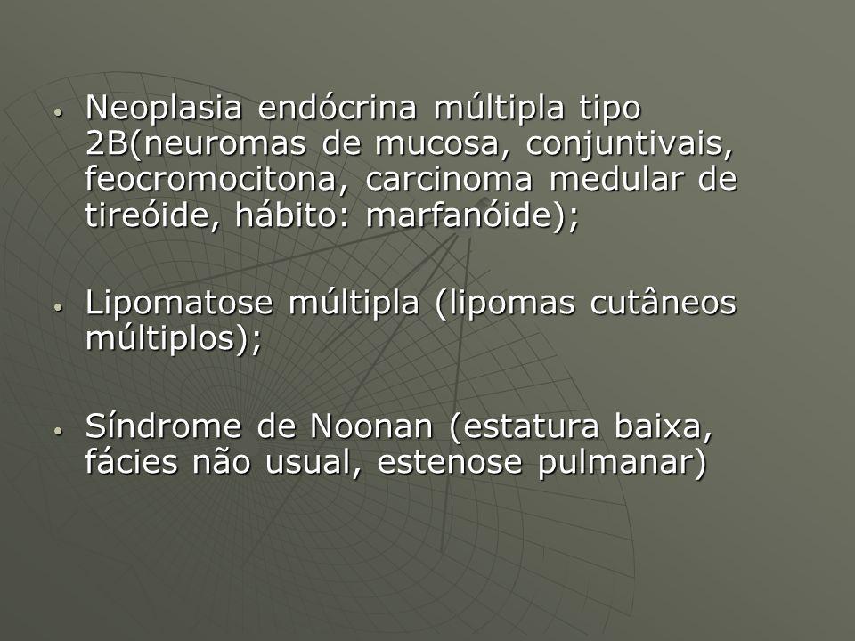 Neoplasia endócrina múltipla tipo 2B(neuromas de mucosa, conjuntivais, feocromocitona, carcinoma medular de tireóide, hábito: marfanóide);
