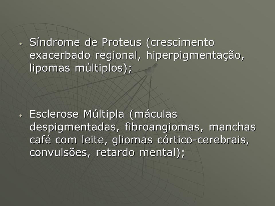 Síndrome de Proteus (crescimento exacerbado regional, hiperpigmentação, lipomas múltiplos);
