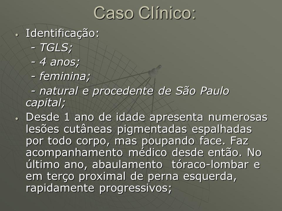 Caso Clínico: Identificação: - TGLS; - 4 anos; - feminina;