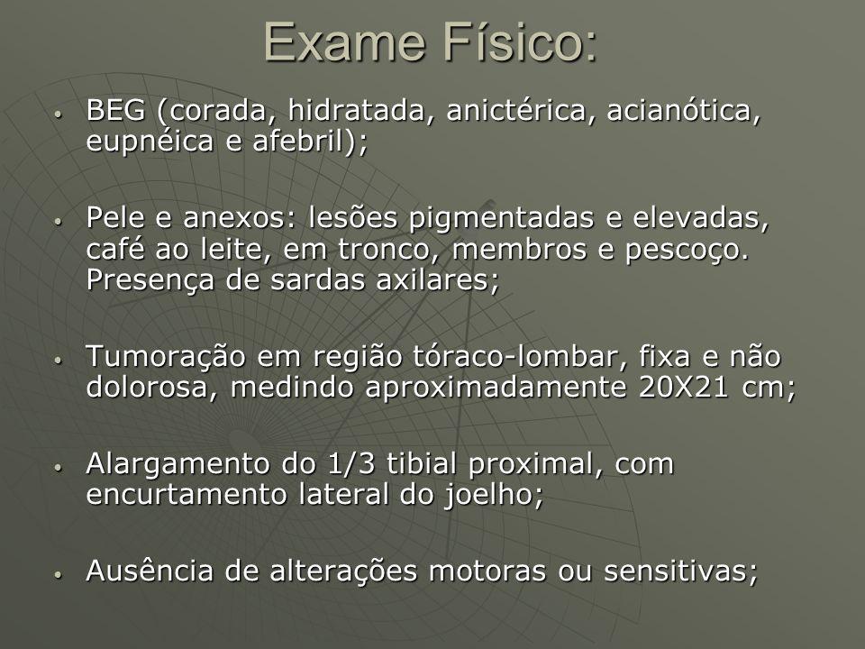 Exame Físico: BEG (corada, hidratada, anictérica, acianótica, eupnéica e afebril);