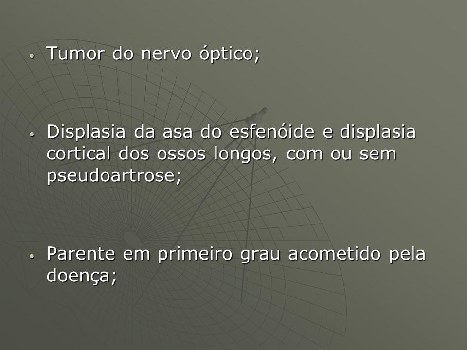 Tumor do nervo óptico; Displasia da asa do esfenóide e displasia cortical dos ossos longos, com ou sem pseudoartrose;