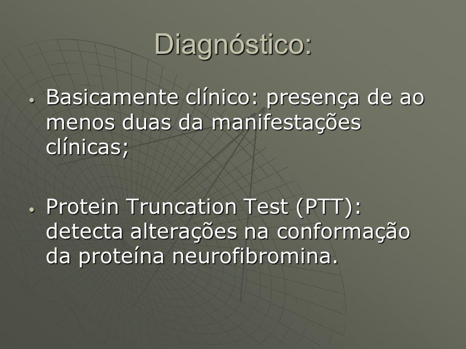 Diagnóstico: Basicamente clínico: presença de ao menos duas da manifestações clínicas;