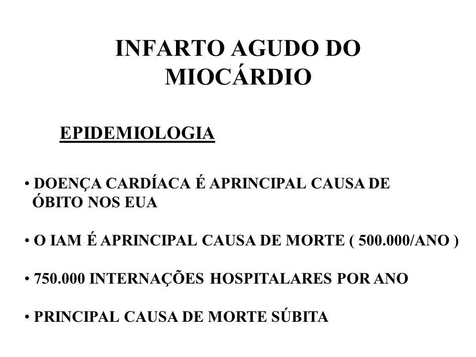 INFARTO AGUDO DO MIOCÁRDIO
