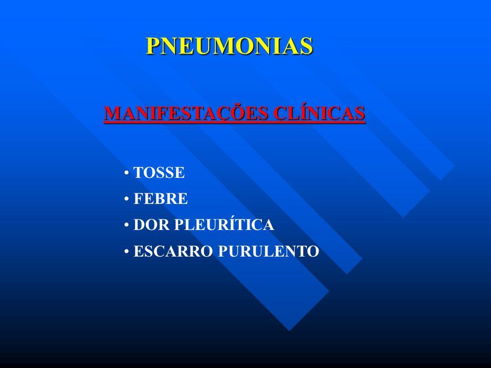 PNEUMONIAS MANIFESTAÇÕES CLÍNICAS TOSSE FEBRE DOR PLEURÍTICA