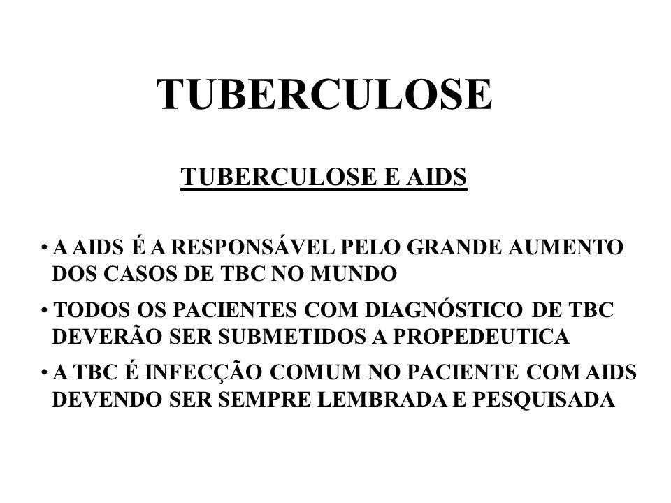 TUBERCULOSE TUBERCULOSE E AIDS