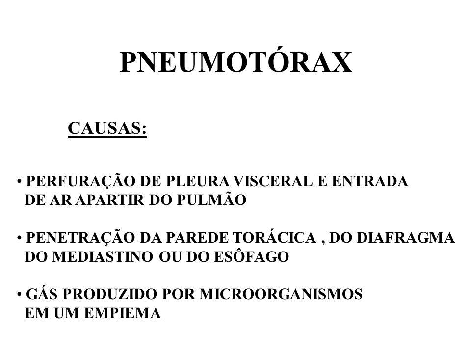 PNEUMOTÓRAX CAUSAS: PERFURAÇÃO DE PLEURA VISCERAL E ENTRADA