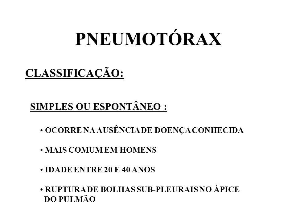 PNEUMOTÓRAX CLASSIFICAÇÃO: SIMPLES OU ESPONTÂNEO :