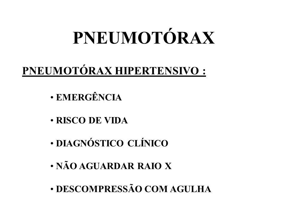 PNEUMOTÓRAX PNEUMOTÓRAX HIPERTENSIVO : EMERGÊNCIA RISCO DE VIDA
