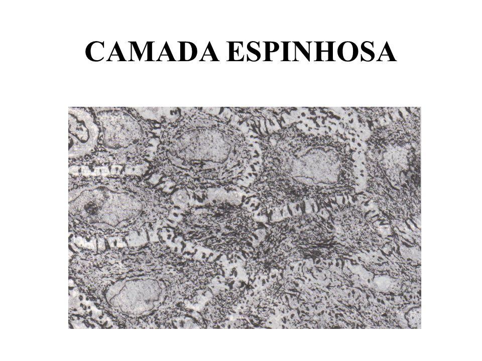CAMADA ESPINHOSA