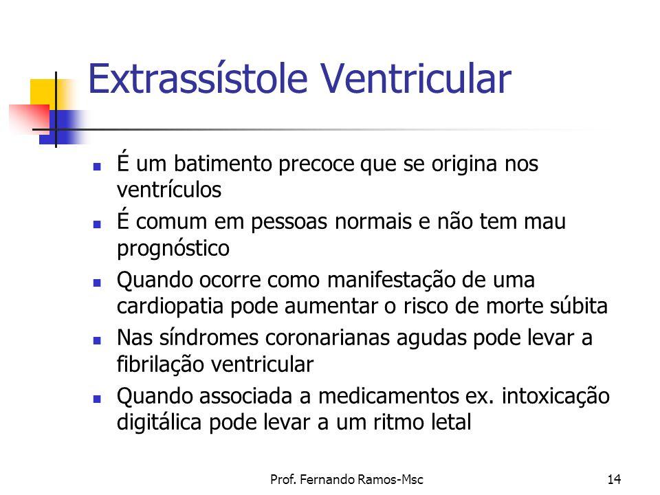 Extrassístole Ventricular