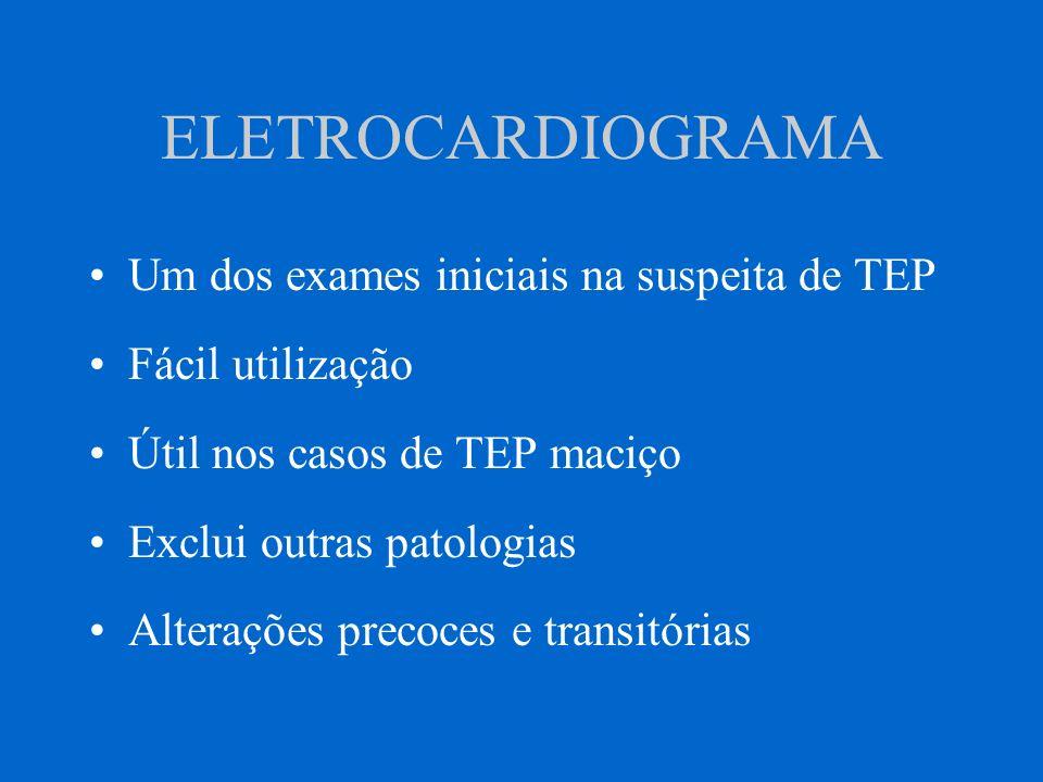 ELETROCARDIOGRAMA Um dos exames iniciais na suspeita de TEP