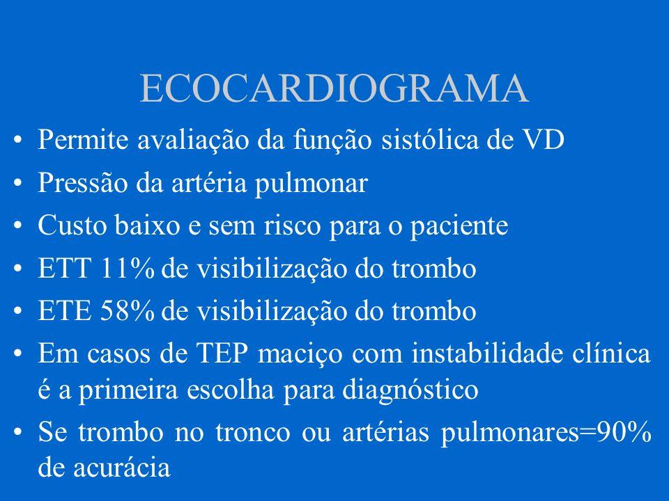 ECOCARDIOGRAMA Permite avaliação da função sistólica de VD