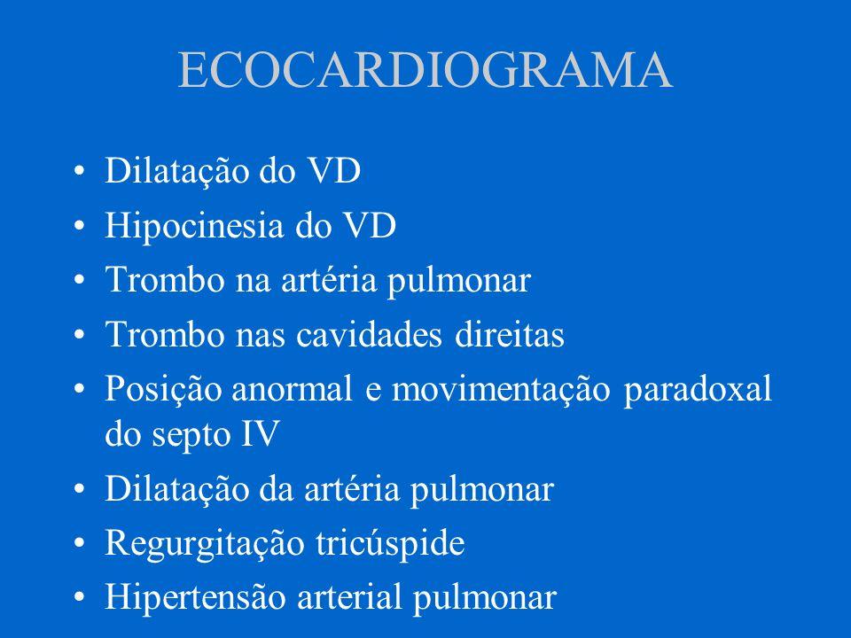 ECOCARDIOGRAMA Dilatação do VD Hipocinesia do VD