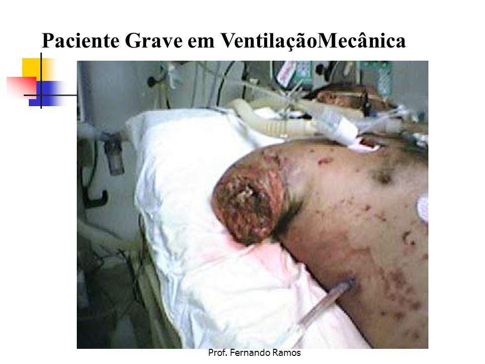 Paciente Grave em VentilaçãoMecânica