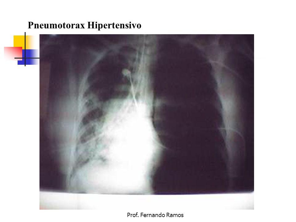 Pneumotorax Hipertensivo