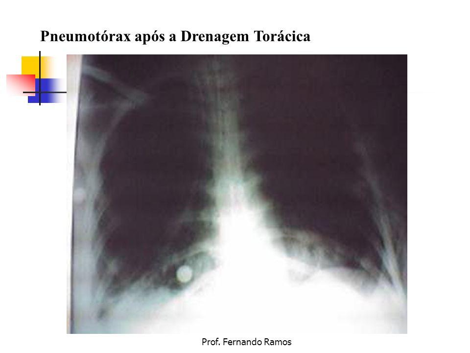Pneumotórax após a Drenagem Torácica