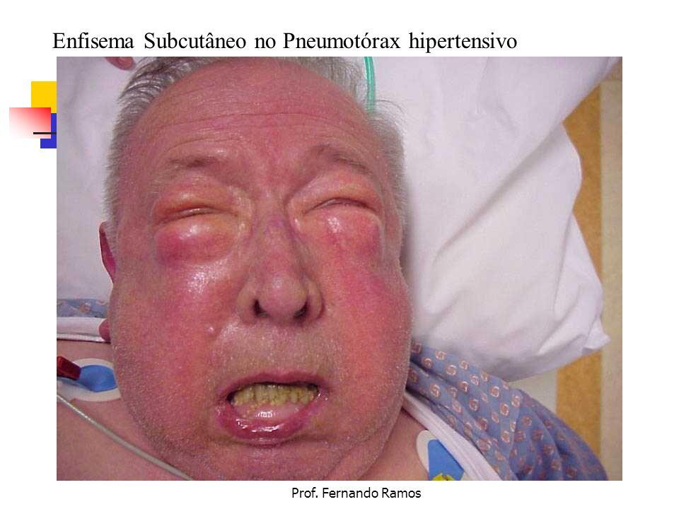 Enfisema Subcutâneo no Pneumotórax hipertensivo