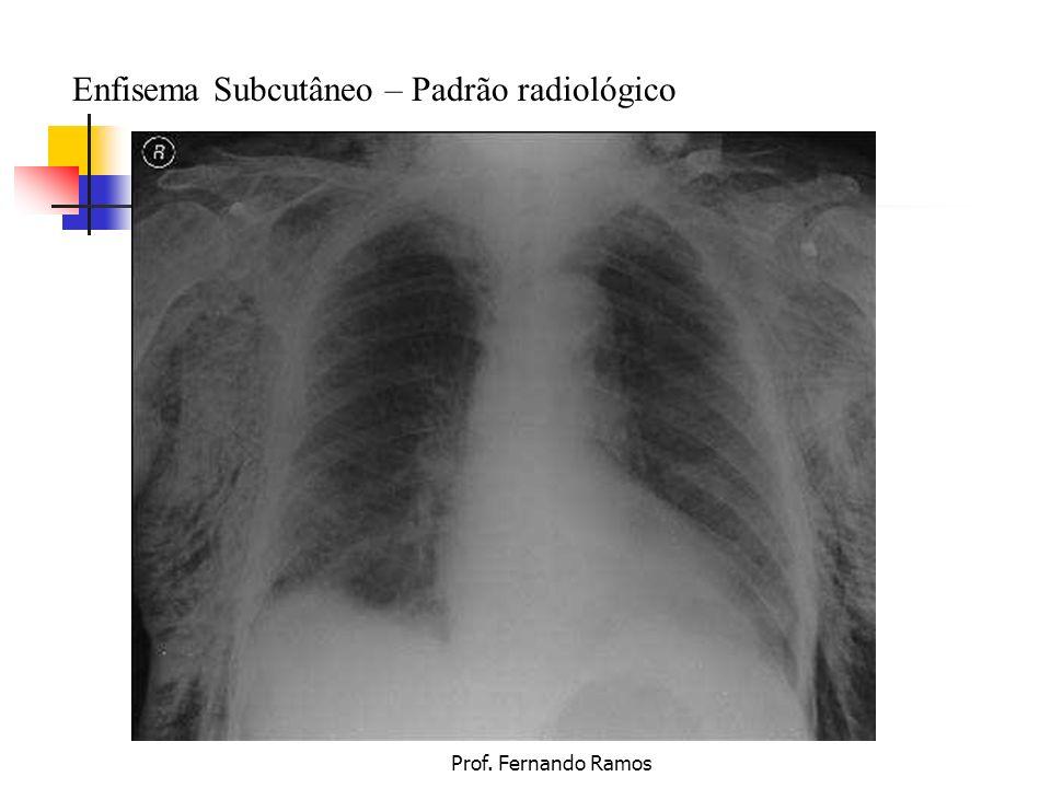 Enfisema Subcutâneo – Padrão radiológico