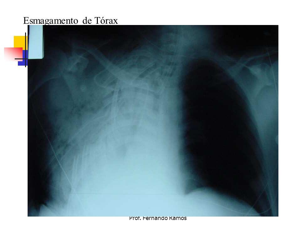 Esmagamento de Tórax Prof. Fernando Ramos