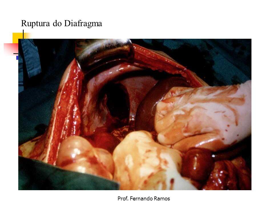 Ruptura do Diafragma Prof. Fernando Ramos