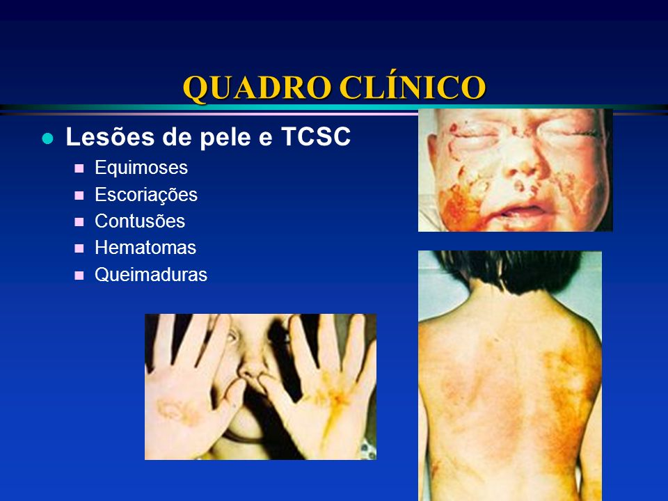 QUADRO CLÍNICO Lesões de pele e TCSC Equimoses Escoriações Contusões