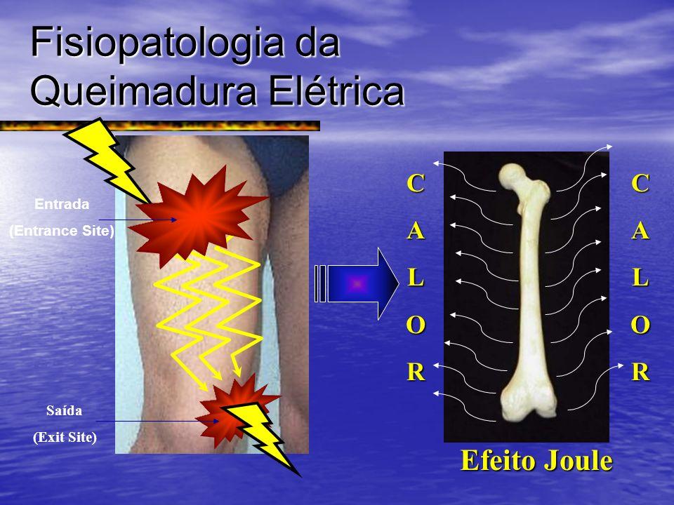 Fisiopatologia da Queimadura Elétrica