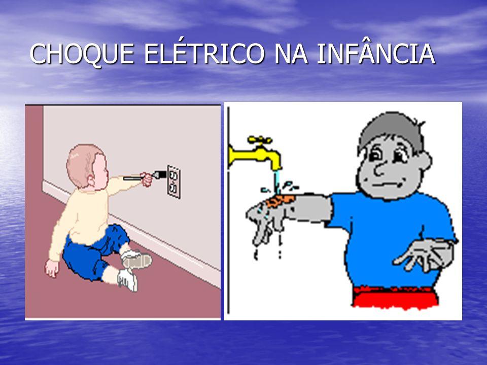 CHOQUE ELÉTRICO NA INFÂNCIA