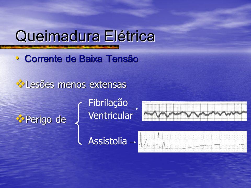 Queimadura Elétrica Corrente de Baixa Tensão Lesões menos extensas