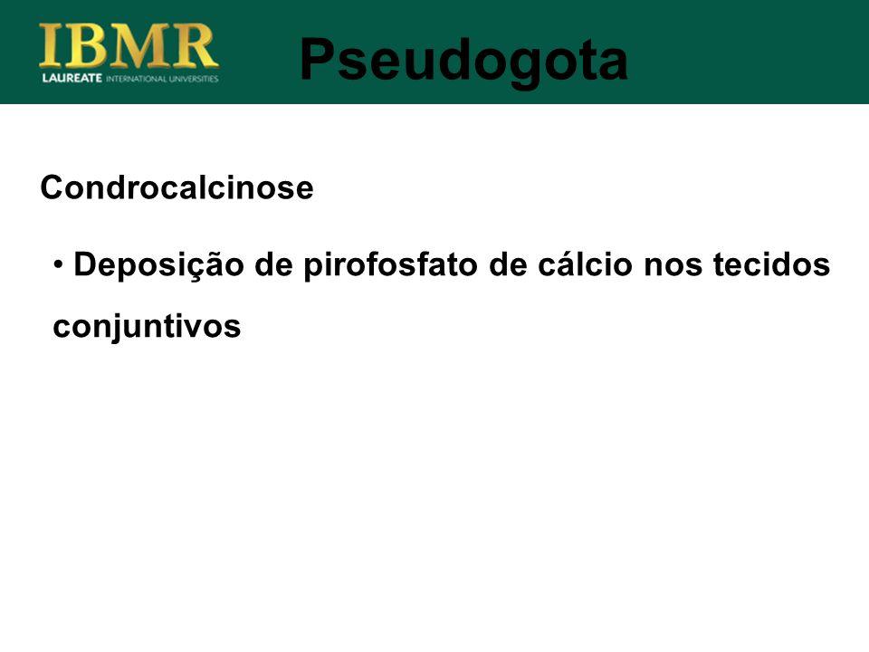 Pseudogota Condrocalcinose