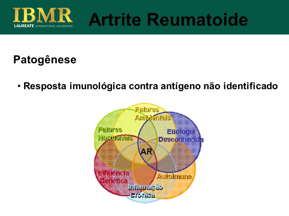 Artrite Reumatoide Patogênese