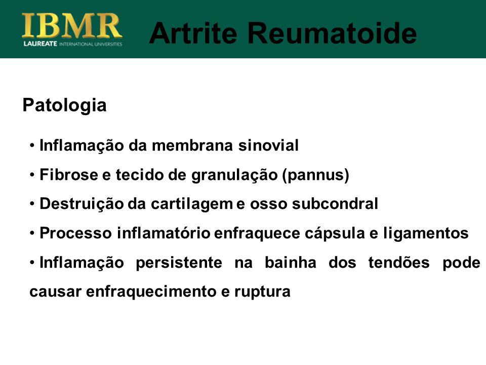 Artrite Reumatoide Patologia Inflamação da membrana sinovial