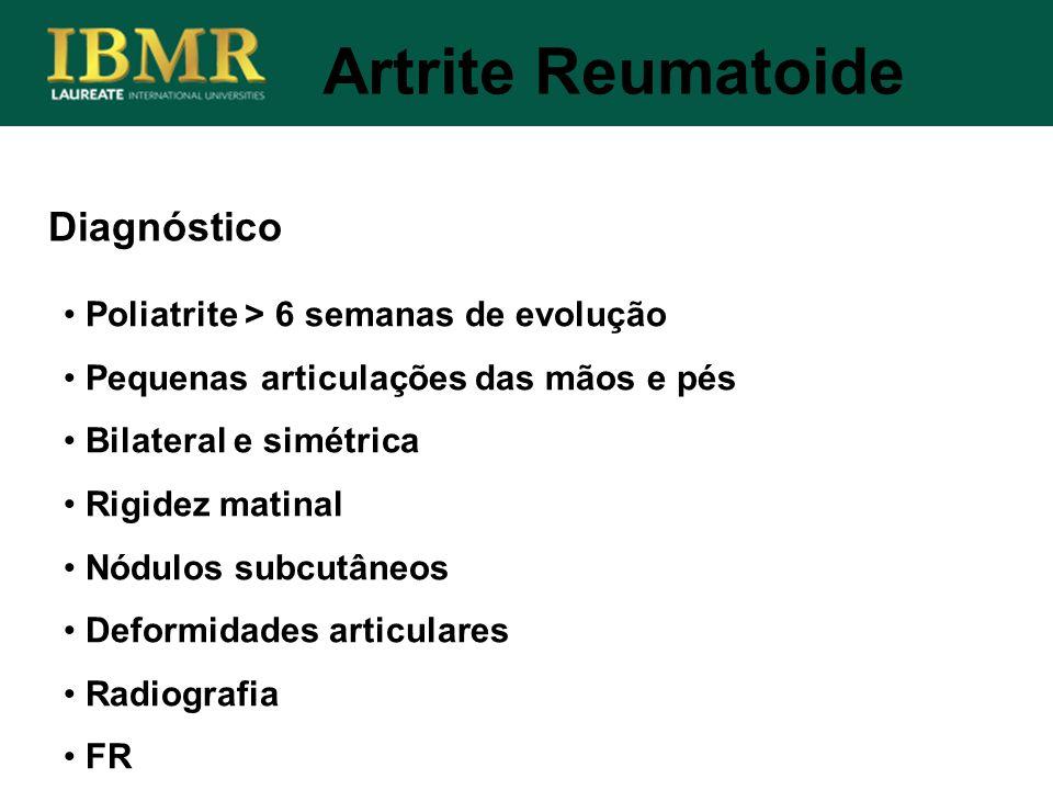 Artrite Reumatoide Diagnóstico Poliatrite > 6 semanas de evolução