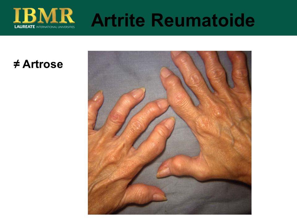 Artrite Reumatoide ≠ Artrose