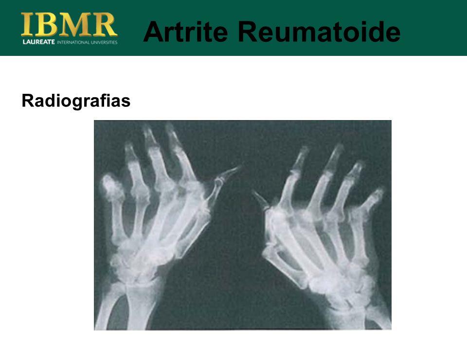 Artrite Reumatoide Radiografias