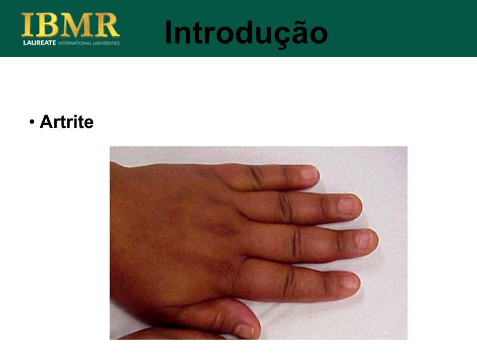 Introdução Artrite