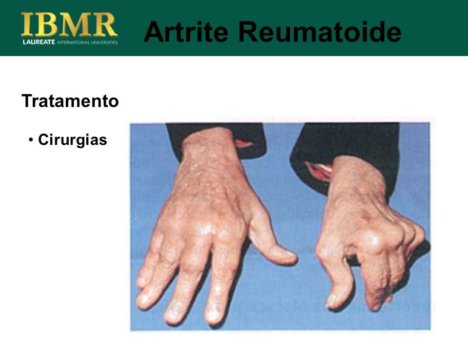 Artrite Reumatoide Tratamento Cirurgias