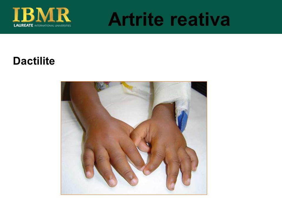 Artrite reativa Dactilite