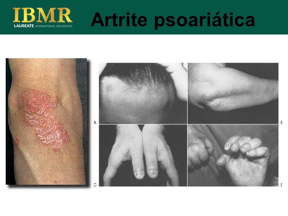 Artrite psoariática